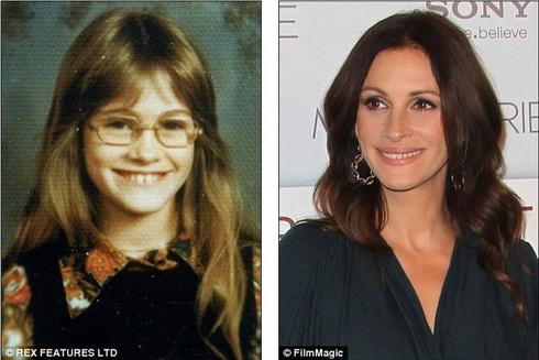 Знаменитая улыбка Джулии Робертс не обошлась без косметической стоматологии